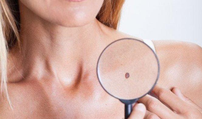 Diagnosis kanker kulit